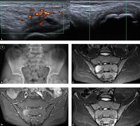 Classifications and imaging of juvenile spondyloarthritis
