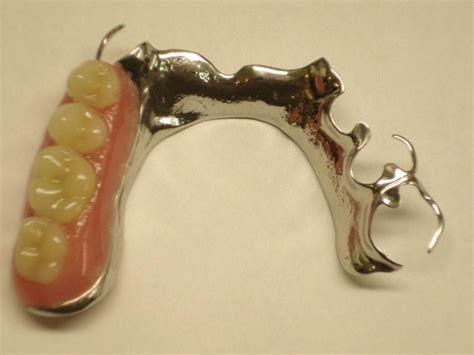 dentalaka: Partial Dentures Questions to improve your